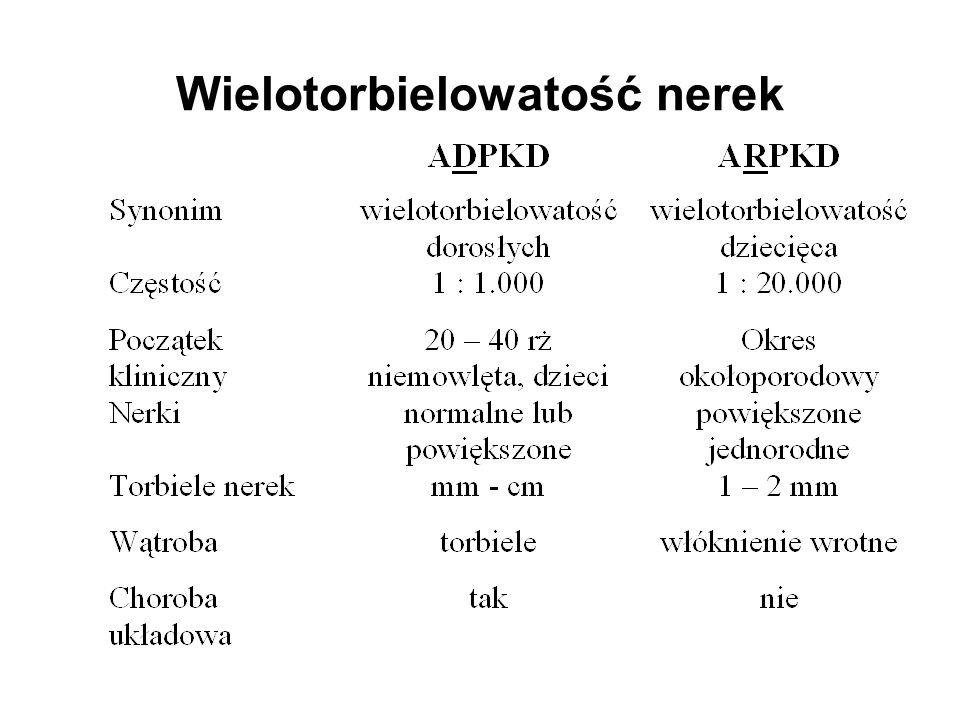Cewka Kłębek Torbiel Mocz Nefron w ADPKD