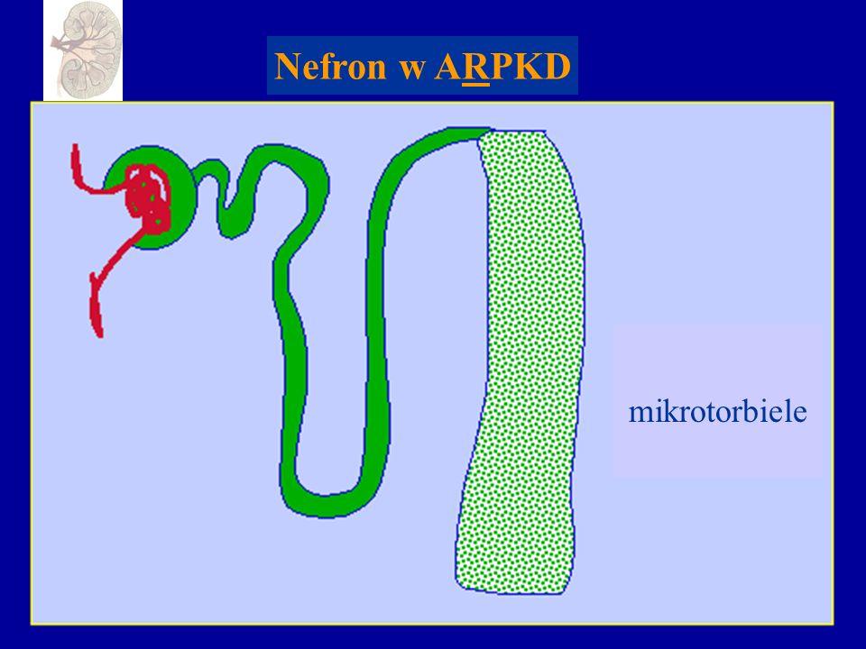 Mechanizm nadciśnienia tętniczego w ADPKD Torbiele nerek Renina Aldosteron Angiotensyna II Retencja Na i H 2 O Opory naczyniowego Komórek Nadciśnienie tętnicze