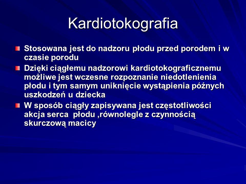 Kardiotokografia Kardiotokografia przerywana - jest to powtarzany (przykładowo co godzinę) zapis kardiotokograficzny (np.15- minutowy) kompromisem między ograniczeniem obciążenia ciężarnej czy rodzącej a dążeniem do bezpieczeństwa płodu jest stosowanie telemetrycznego przekazu ciągłego zapisu kardiotokograficznego Kardiotokografia przerywana - jest to powtarzany (przykładowo co godzinę) zapis kardiotokograficzny (np.15- minutowy) kompromisem między ograniczeniem obciążenia ciężarnej czy rodzącej a dążeniem do bezpieczeństwa płodu jest stosowanie telemetrycznego przekazu ciągłego zapisu kardiotokograficznego