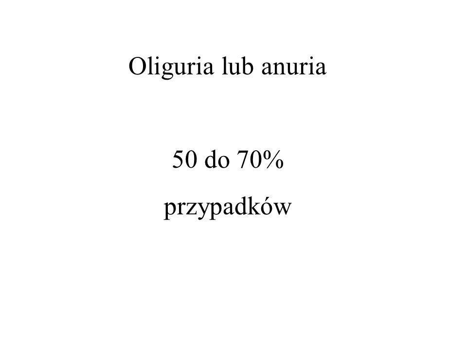 Oliguria lub anuria 50 do 70% przypadków