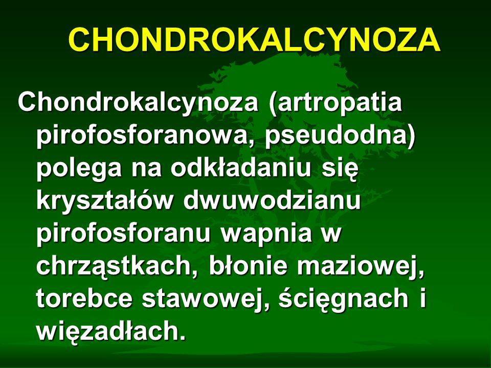 CHONDROKALCYNOZA Chondrokalcynoza (artropatia pirofosforanowa, pseudodna) polega na odkładaniu się kryształów dwuwodzianu pirofosforanu wapnia w chrzą