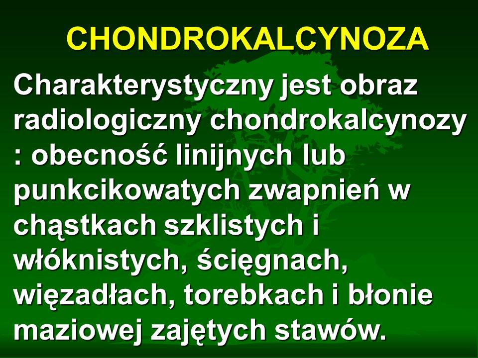 CHONDROKALCYNOZA Charakterystyczny jest obraz radiologiczny chondrokalcynozy : obecność linijnych lub punkcikowatych zwapnień w chąstkach szklistych i