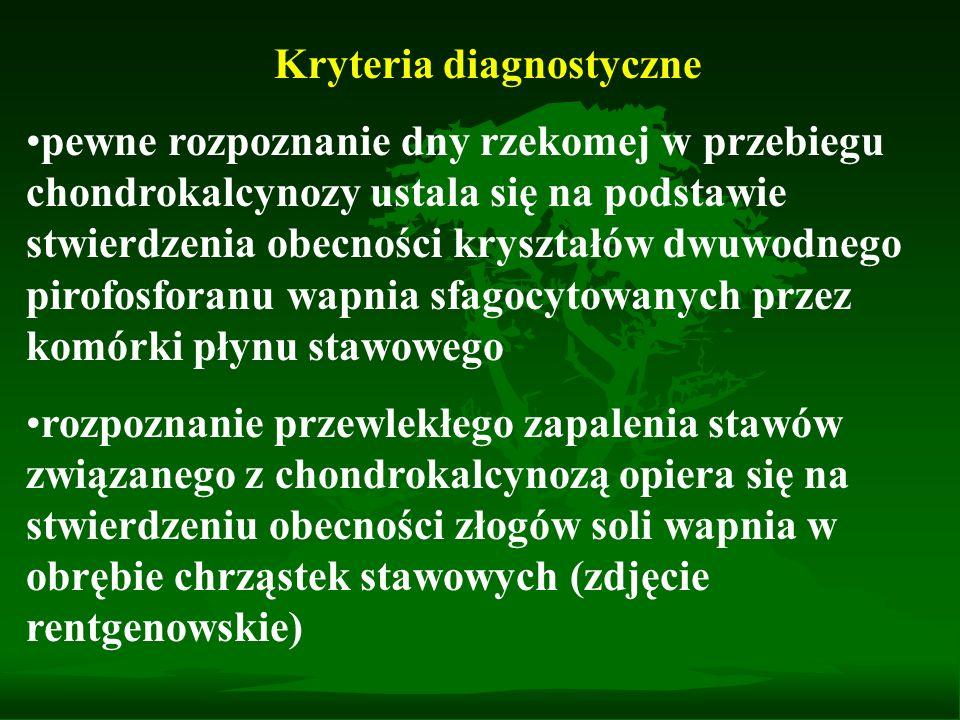 Kryteria diagnostyczne pewne rozpoznanie dny rzekomej w przebiegu chondrokalcynozy ustala się na podstawie stwierdzenia obecności kryształów dwuwodneg