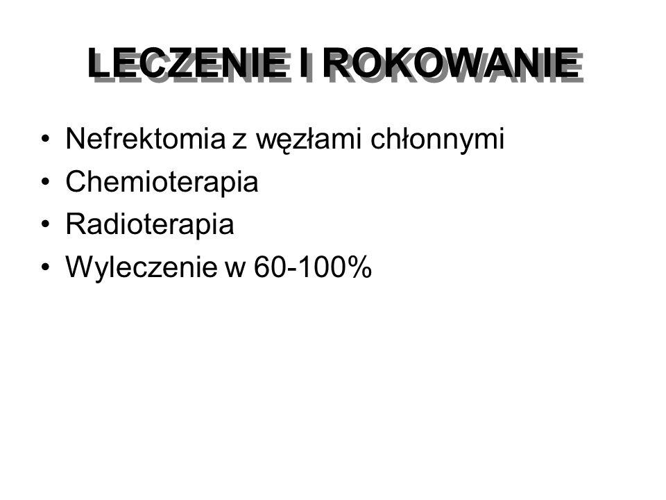 LECZENIE I ROKOWANIE Nefrektomia z węzłami chłonnymi Chemioterapia Radioterapia Wyleczenie w 60-100%