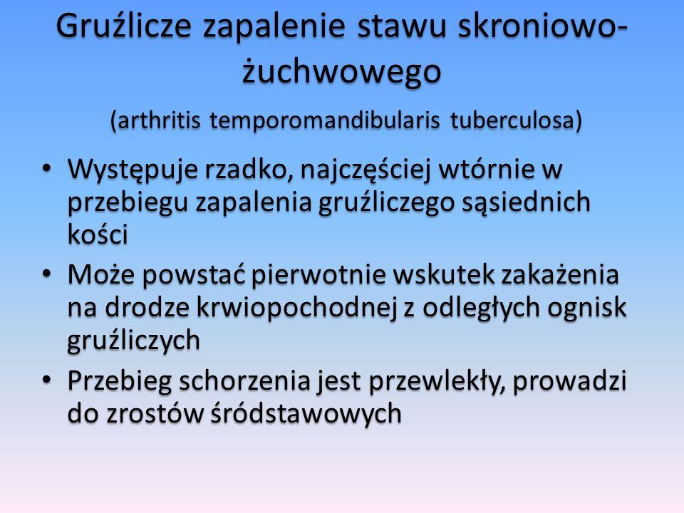 Gruźlicze zapalenie stawu skroniowo- żuchwowego (arthritis temporomandibularis tuberculosa) Występuje rzadko, najczęściej wtórnie w przebiegu zapaleni