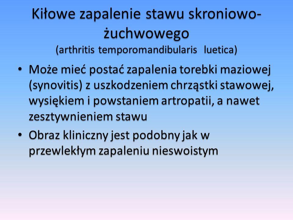 Kiłowe zapalenie stawu skroniowo- żuchwowego (arthritis temporomandibularis luetica) Może mieć postać zapalenia torebki maziowej (synovitis) z uszkodz