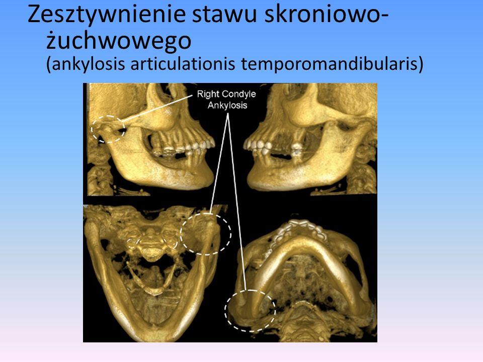 Zesztywnienie stawu skroniowo- żuchwowego (ankylosis articulationis temporomandibularis)
