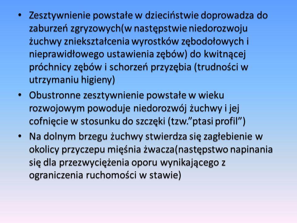 Zesztywnienie powstałe w dzieciństwie doprowadza do zaburzeń zgryzowych(w następstwie niedorozwoju żuchwy zniekształcenia wyrostków zębodołowych i nie
