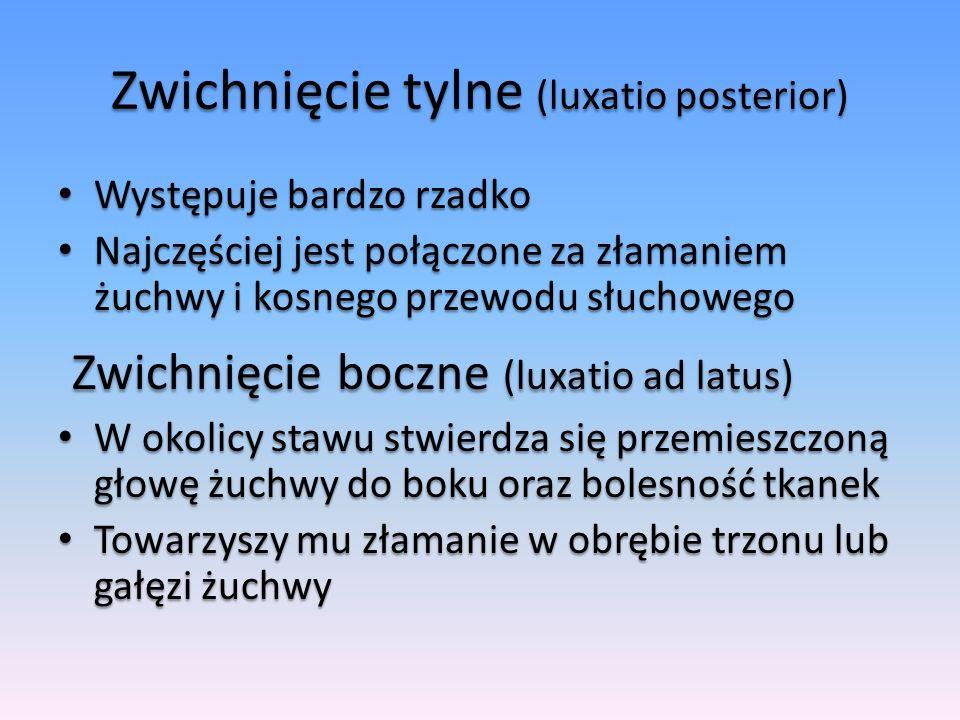 Zwichnięcie tylne (luxatio posterior) Występuje bardzo rzadko Występuje bardzo rzadko Najczęściej jest połączone za złamaniem żuchwy i kosnego przewod