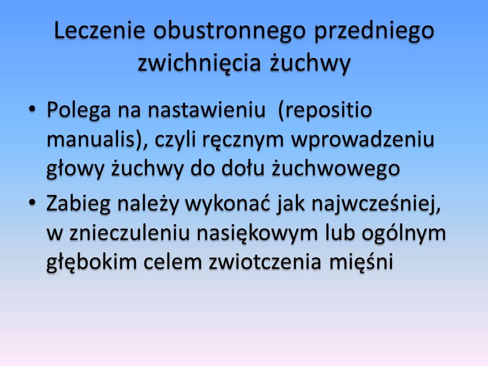 Leczenie obustronnego przedniego zwichnięcia żuchwy Polega na nastawieniu (repositio manualis), czyli ręcznym wprowadzeniu głowy żuchwy do dołu żuchwo
