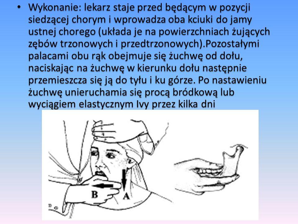 Wykonanie: lekarz staje przed będącym w pozycji siedzącej chorym i wprowadza oba kciuki do jamy ustnej chorego (układa je na powierzchniach żujących z