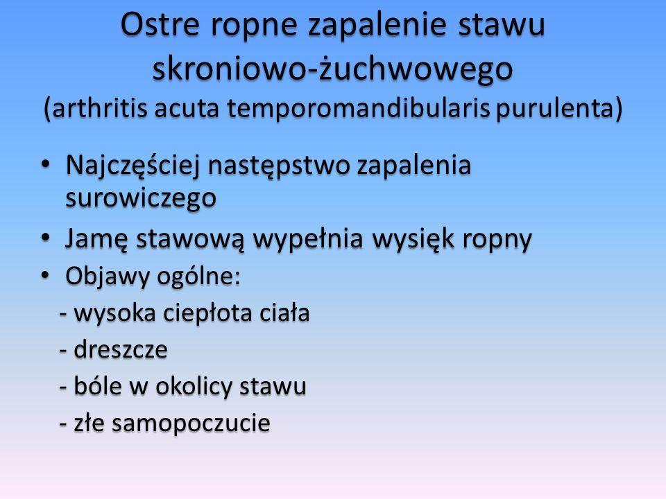 Ostre ropne zapalenie stawu skroniowo-żuchwowego (arthritis acuta temporomandibularis purulenta) Najczęściej następstwo zapalenia surowiczego Najczęśc