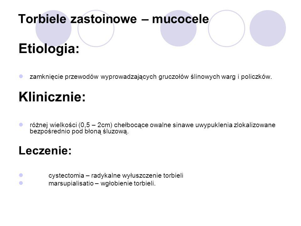 Torbiele zastoinowe – mucocele Etiologia: zamknięcie przewodów wyprowadzających gruczołów ślinowych warg i policzków. Klinicznie: różnej wielkości (0,