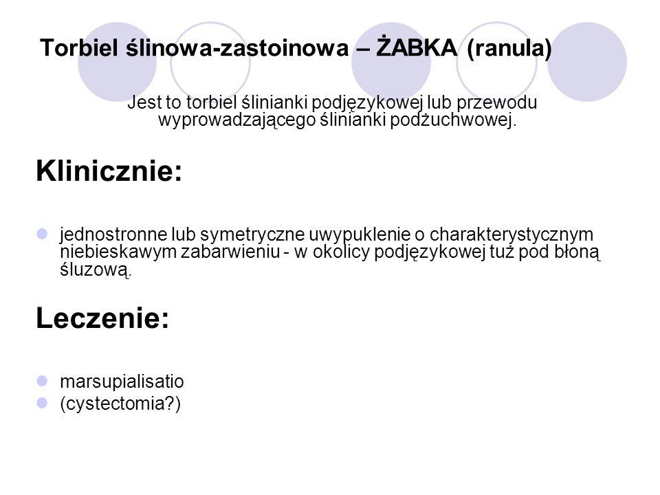 Torbiel ślinowa-zastoinowa – ŻABKA (ranula) Jest to torbiel ślinianki podjęzykowej lub przewodu wyprowadzającego ślinianki podżuchwowej. Klinicznie: j