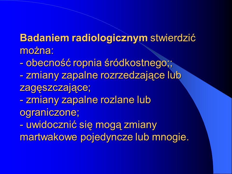Diagnostyka kiły polega na: - badaniu klinicznym; - badaniu mikroskopowym wydzieliny z ogniska pierwotnego; - badaniach serologicznych.