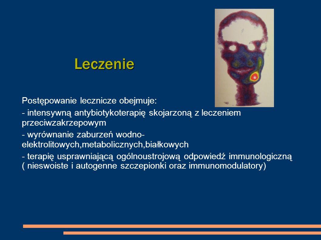 Leczenie Postępowanie lecznicze obejmuje: - intensywną antybiotykoterapię skojarzoną z leczeniem przeciwzakrzepowym - wyrównanie zaburzeń wodno- elekt