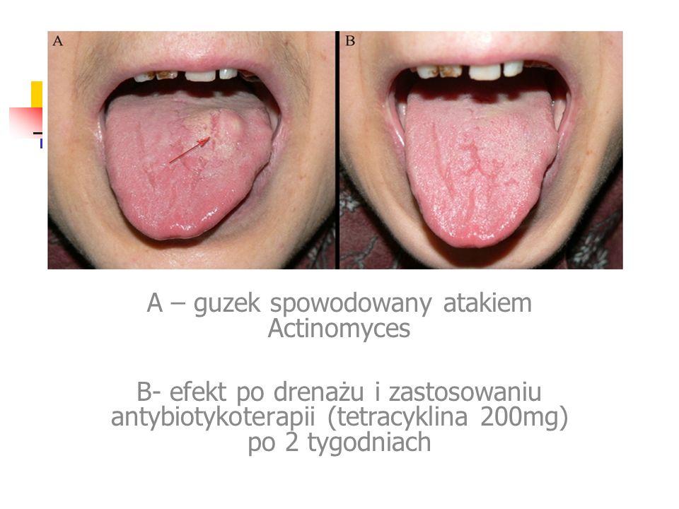 A – guzek spowodowany atakiem Actinomyces B- efekt po drenażu i zastosowaniu antybiotykoterapii (tetracyklina 200mg) po 2 tygodniach
