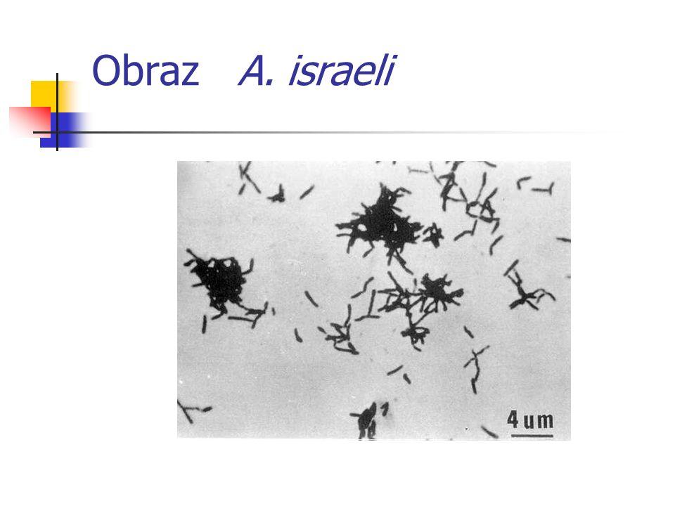 Obraz A. israeli