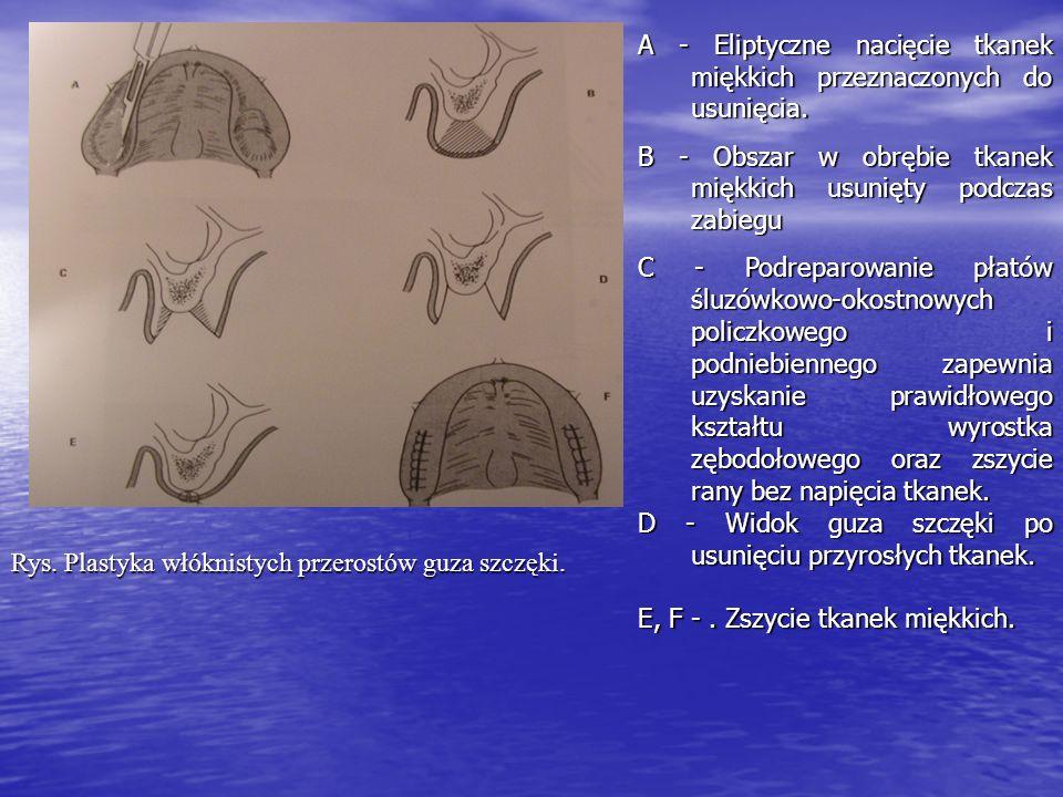 Rys. Plastyka włóknistych przerostów guza szczęki. A - Eliptyczne nacięcie tkanek miękkich przeznaczonych do usunięcia. B - Obszar w obrębie tkanek mi