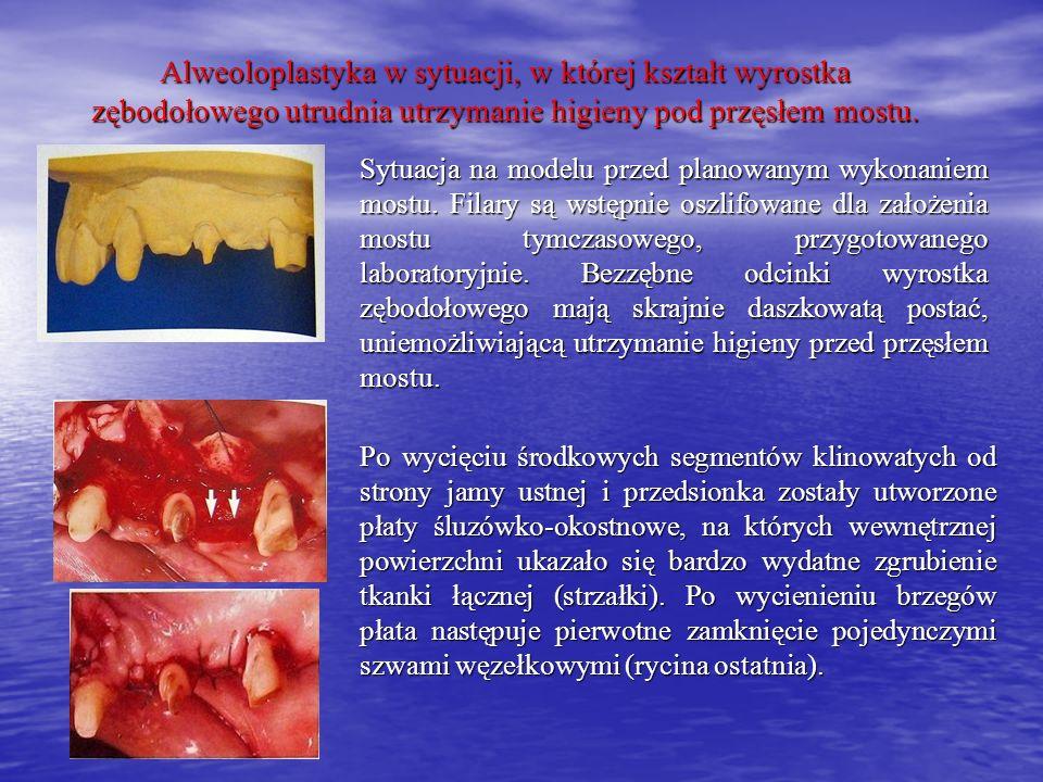 Alweoloplastyka w sytuacji, w której kształt wyrostka zębodołowego utrudnia utrzymanie higieny pod przęsłem mostu. Sytuacja na modelu przed planowanym