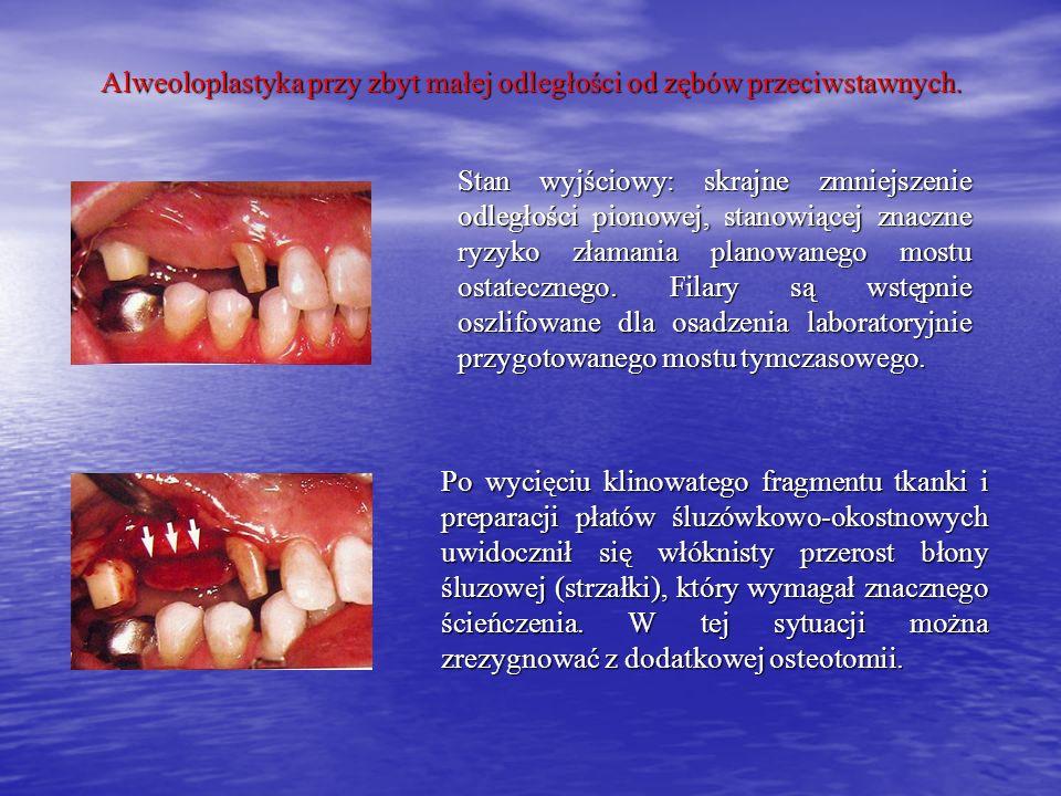 Alweoloplastyka przy zbyt małej odległości od zębów przeciwstawnych. Stan wyjściowy: skrajne zmniejszenie odległości pionowej, stanowiącej znaczne ryz