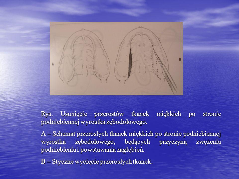 Rys. Usunięcie przerostów tkanek miękkich po stronie podniebiennej wyrostka zębodołowego. A – Schemat przerosłych tkanek miękkich po stronie podniebie