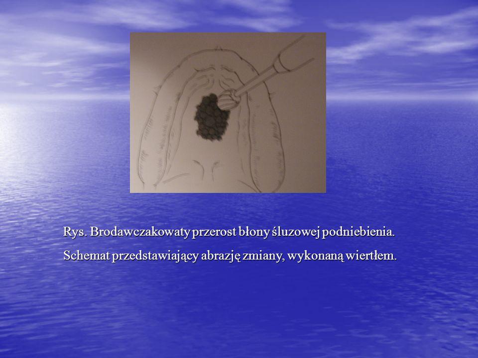 Rys. Brodawczakowaty przerost błony śluzowej podniebienia. Schemat przedstawiający abrazję zmiany, wykonaną wiertłem.
