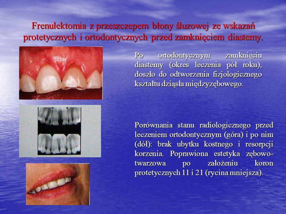 Po ortodontycznym zamknięciu diastemy (okres leczenia pół roku), doszło do odtworzenia fizjologicznego kształtu dziąsła międzyzębowego. Porównania sta