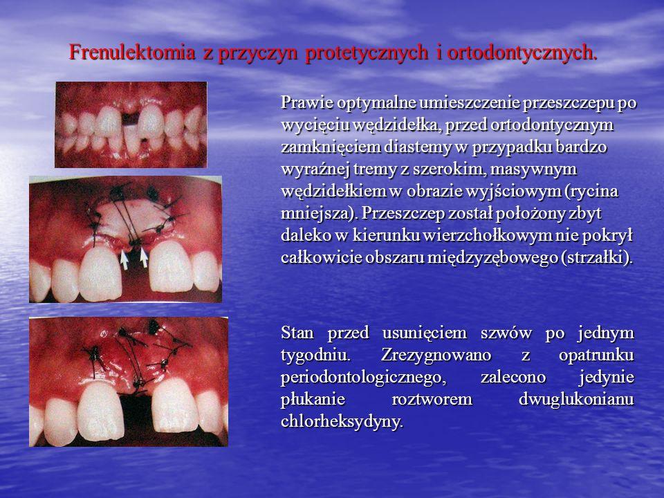 Frenulektomia z przyczyn protetycznych i ortodontycznych. Prawie optymalne umieszczenie przeszczepu po wycięciu wędzidełka, przed ortodontycznym zamkn