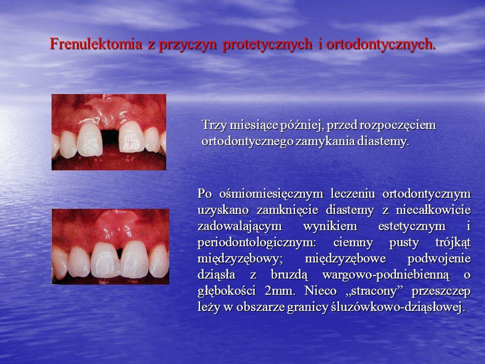 Frenulektomia z przyczyn protetycznych i ortodontycznych. Trzy miesiące później, przed rozpoczęciem ortodontycznego zamykania diastemy. Po ośmiomiesię