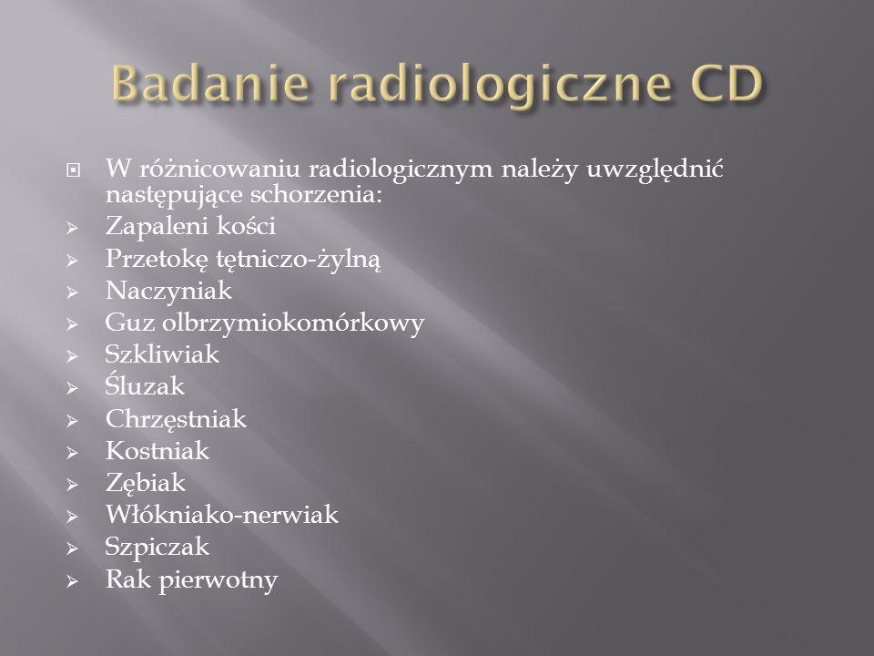 W różnicowaniu radiologicznym należy uwzględnić następujące schorzenia: Zapaleni kości Przetokę tętniczo-żylną Naczyniak Guz olbrzymiokomórkowy Szkliw