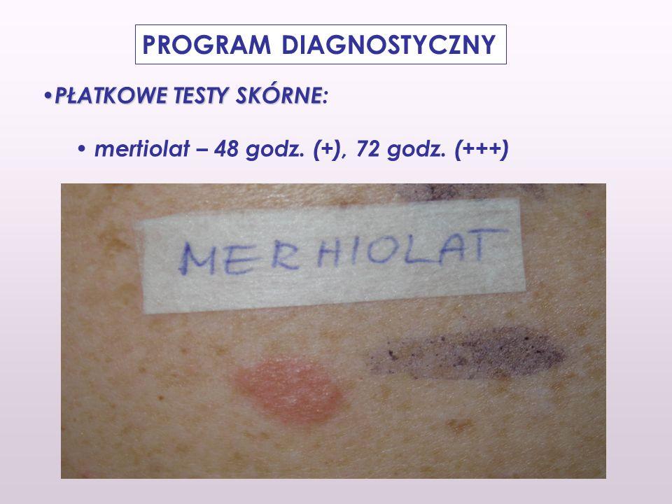 PŁATKOWE TESTY SKÓRNE PŁATKOWE TESTY SKÓRNE: mertiolat – 48 godz. (+), 72 godz. (+++) PROGRAM DIAGNOSTYCZNY