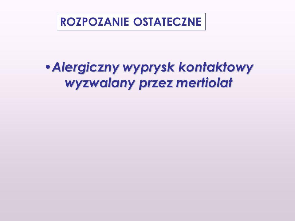 ROZPOZANIE OSTATECZNE Alergiczny wyprysk kontaktowy wyzwalany przez mertiolat Alergiczny wyprysk kontaktowy wyzwalany przez mertiolat