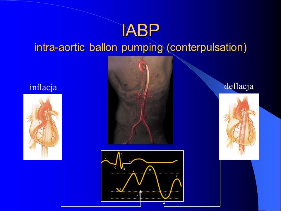 IABP intra-aortic ballon pumping (conterpulsation) inflacja deflacja