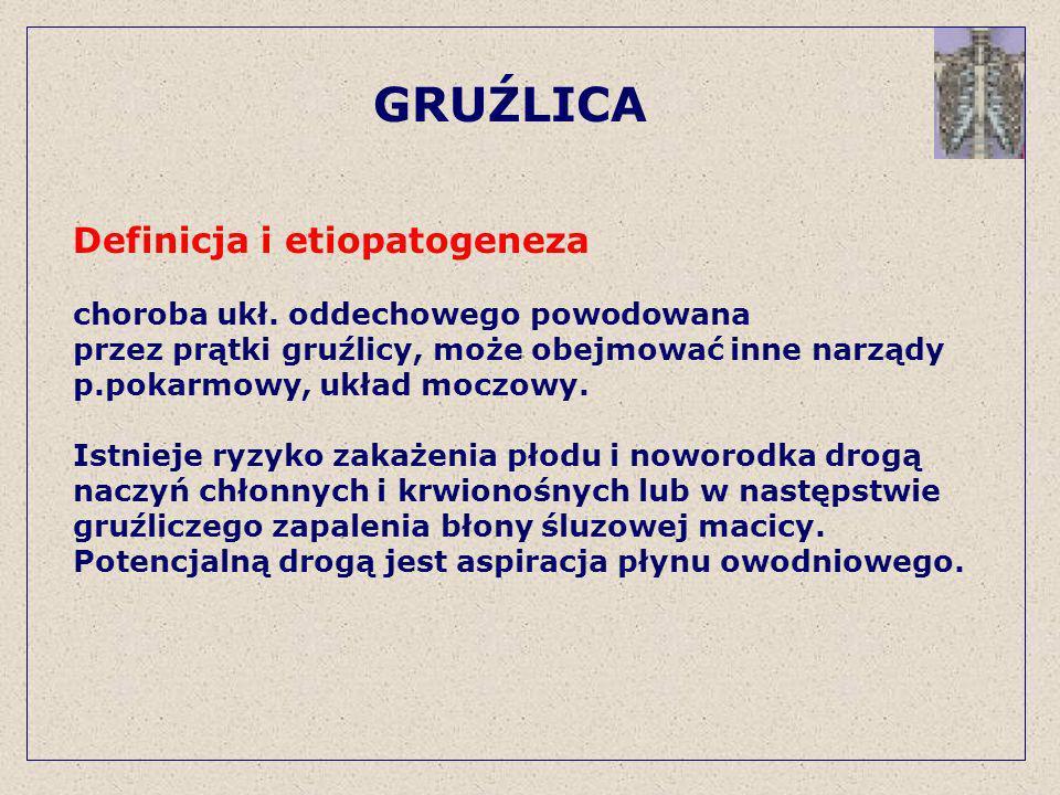 GRUŹLICA Definicja i etiopatogeneza choroba ukł. oddechowego powodowana przez prątki gruźlicy, może obejmować inne narządy p.pokarmowy, układ moczowy.