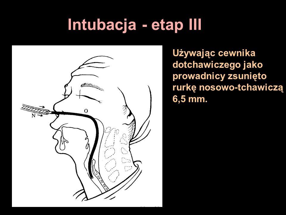 Intubacja - etap III Używając cewnika dotchawiczego jako prowadnicy zsunięto rurkę nosowo-tchawiczą 6,5 mm.