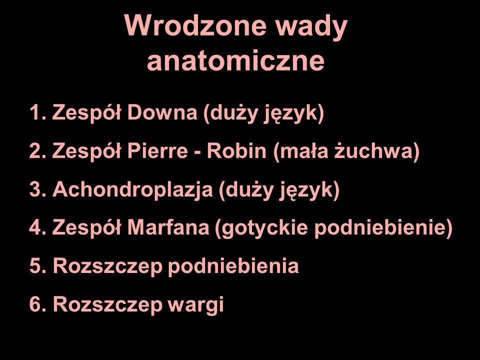 Wrodzone wady anatomiczne 1. Zespół Downa (duży język) 2. Zespół Pierre - Robin (mała żuchwa) 3. Achondroplazja (duży język) 4. Zespół Marfana (gotyck