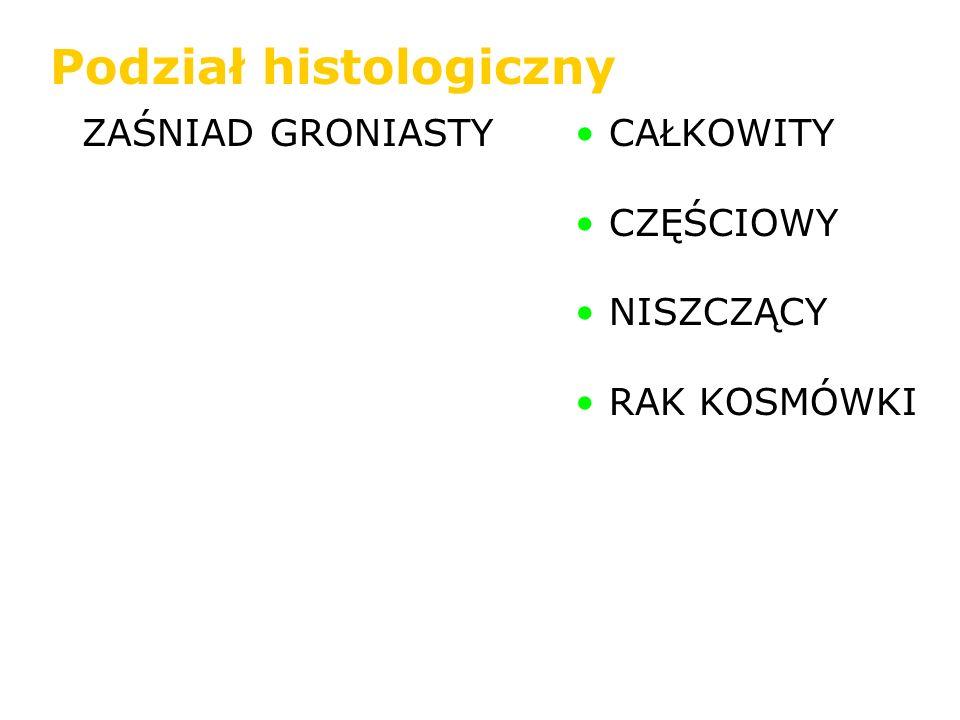 ZAŚNIAD GRONIASTY CAŁKOWITY CZĘŚCIOWY NISZCZĄCY RAK KOSMÓWKI Podział histologiczny