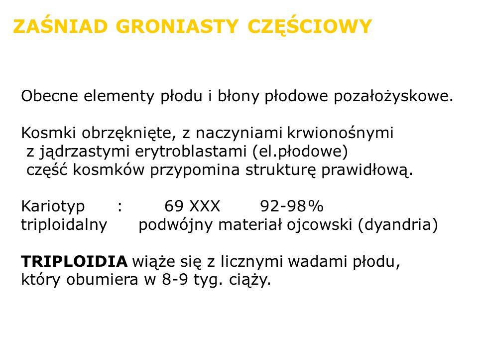 ZAŚNIAD GRONIASTY CZĘŚCIOWY Obecne elementy płodu i błony płodowe pozałożyskowe. Kosmki obrzęknięte, z naczyniami krwionośnymi z jądrzastymi erytrobla