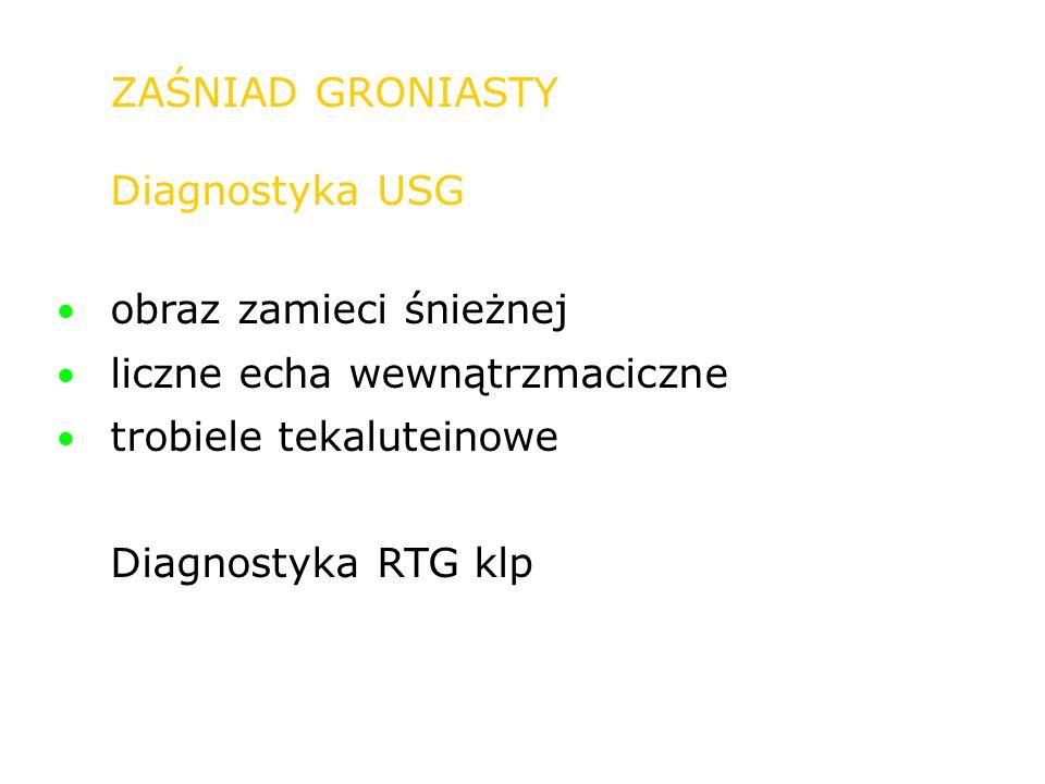 ZAŚNIAD GRONIASTY Diagnostyka USG obraz zamieci śnieżnej liczne echa wewnątrzmaciczne trobiele tekaluteinowe Diagnostyka RTG klp