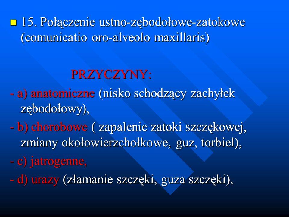 15. Połączenie ustno-zębodołowe-zatokowe (comunicatio oro-alveolo maxillaris) 15. Połączenie ustno-zębodołowe-zatokowe (comunicatio oro-alveolo maxill