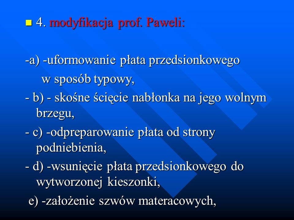 4. modyfikacja prof. Paweli: 4. modyfikacja prof. Paweli: -a) -uformowanie płata przedsionkowego w sposób typowy, w sposób typowy, - b) - skośne ścięc