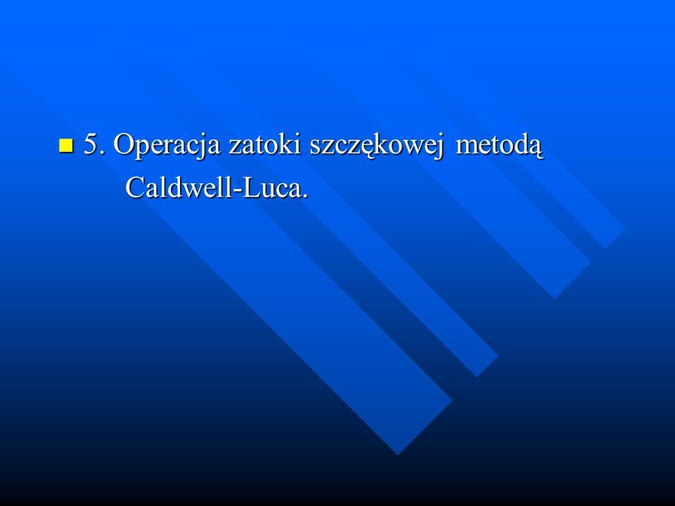 5. Operacja zatoki szczękowej metodą 5. Operacja zatoki szczękowej metodą Caldwell-Luca. Caldwell-Luca.