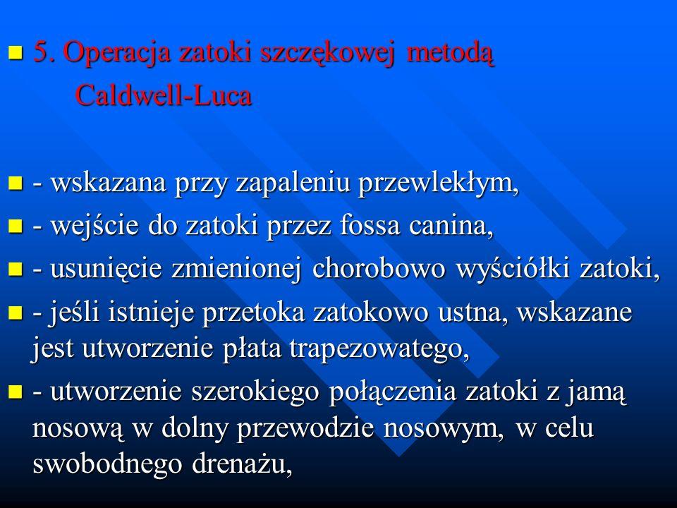 5. Operacja zatoki szczękowej metodą 5. Operacja zatoki szczękowej metodą Caldwell-Luca Caldwell-Luca - wskazana przy zapaleniu przewlekłym, - wskazan