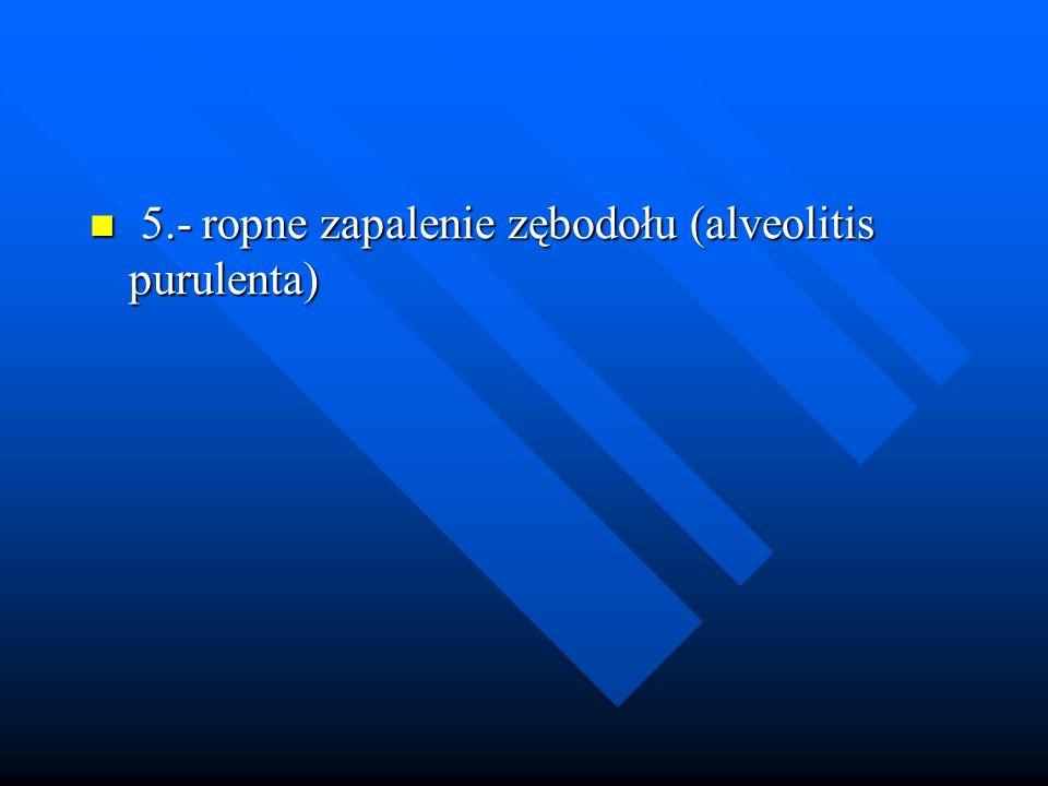 5.- ropne zapalenie zębodołu (alveolitis purulenta) 5.- ropne zapalenie zębodołu (alveolitis purulenta)