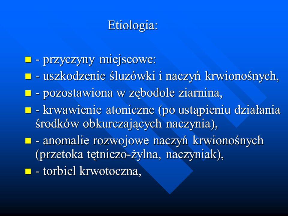 Etiologia: Etiologia: - przyczyny miejscowe: - przyczyny miejscowe: - uszkodzenie śluzówki i naczyń krwionośnych, - uszkodzenie śluzówki i naczyń krwi