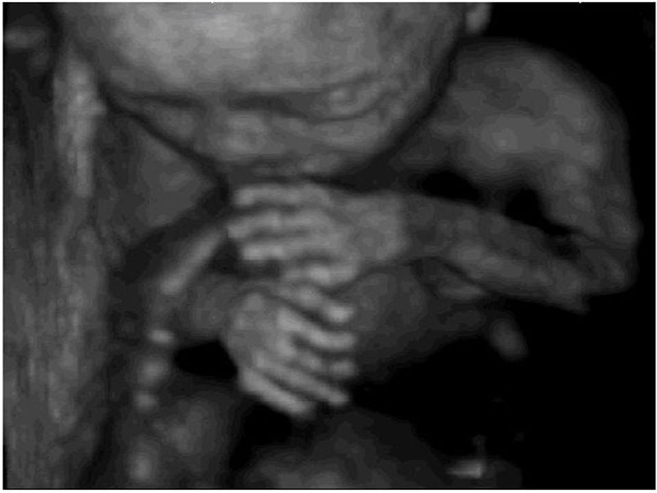Standardowe badania USG Zgodnie z zaleceniami Konsultanta Krajowego w Dziedzinie Ginekologii i Położnictwa w Polsce u każdej ciężarnej należy wykonać