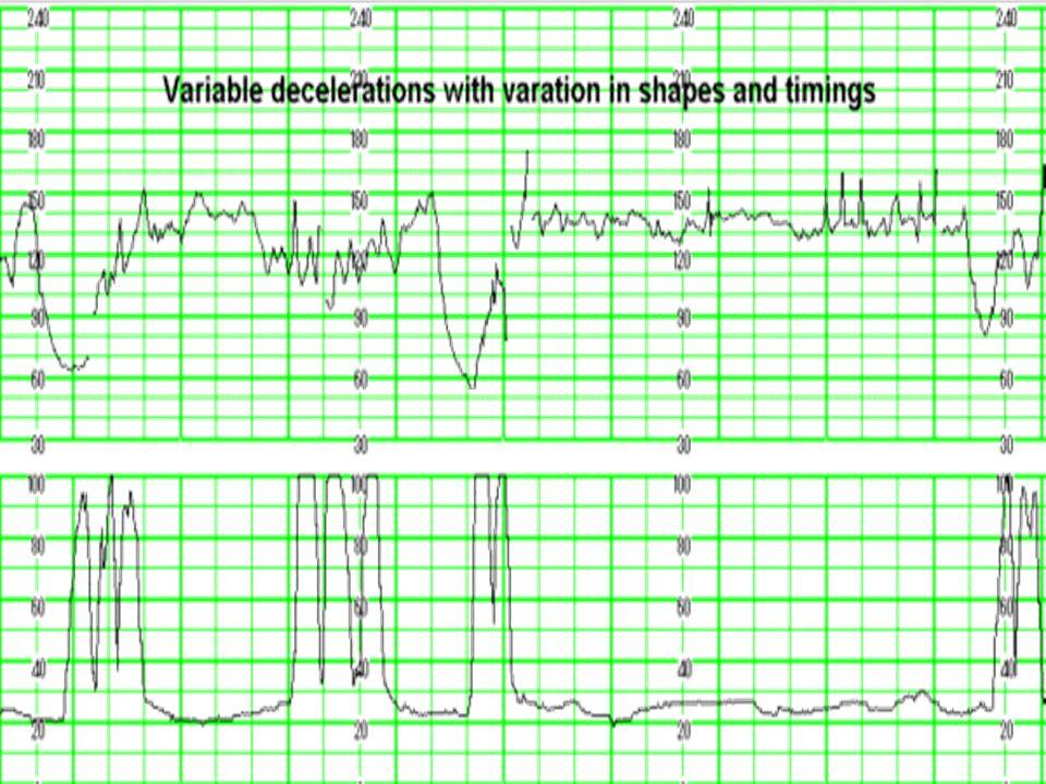 Kardiotokografia-charakter zapisu w długim odcinku czasu Deceleracja zmienna- zmienny czas obniżenia częstotliwości tętna płodu (początek i koniec) w