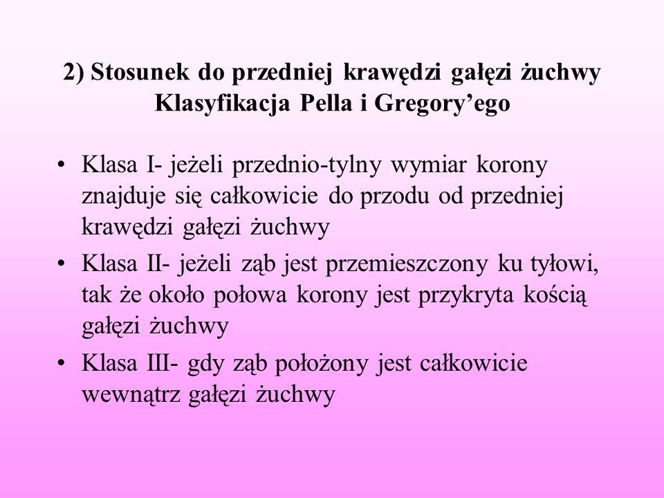 2) Stosunek do przedniej krawędzi gałęzi żuchwy Klasyfikacja Pella i Gregoryego Klasa I- jeżeli przednio-tylny wymiar korony znajduje się całkowicie d