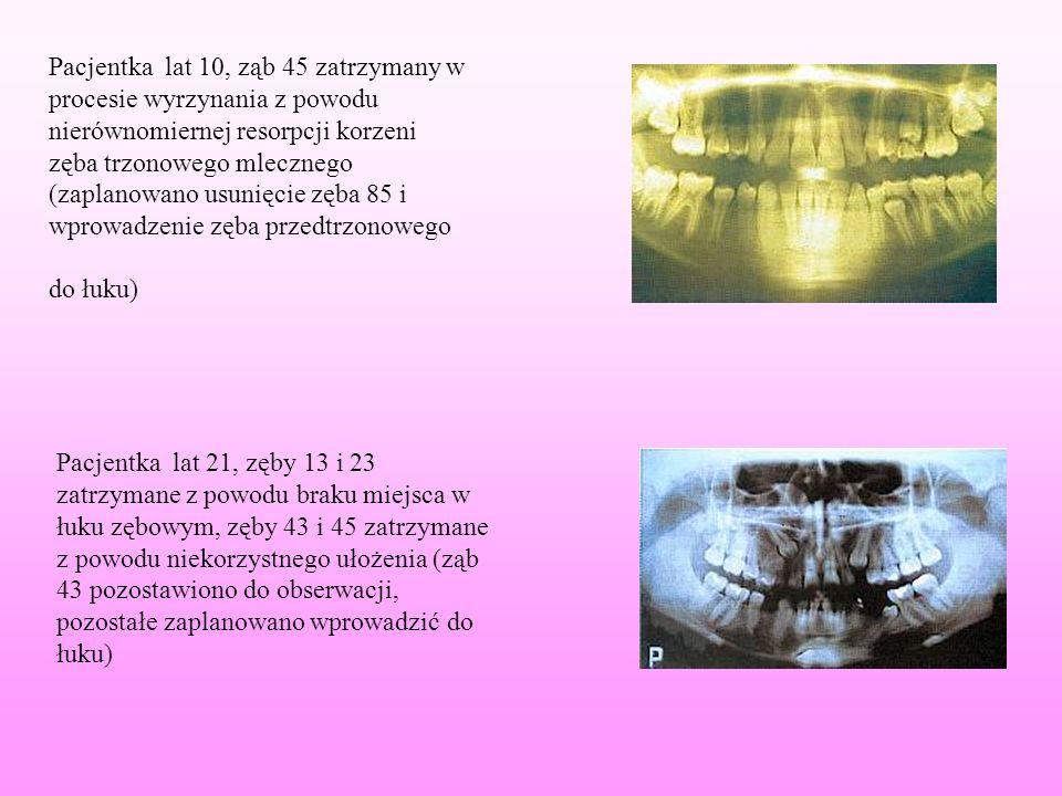 Pacjentka lat 10, ząb 45 zatrzymany w procesie wyrzynania z powodu nierównomiernej resorpcji korzeni zęba trzonowego mlecznego (zaplanowano usunięcie